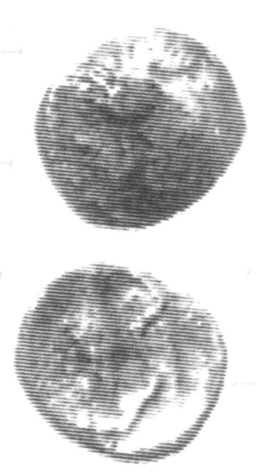 A resized image of An Iron Age Unit from SURREY Atrebates Celtic Coin Index reference:  96.0069