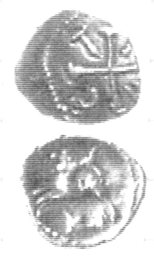 CCI-960098: An Iron Age Unit from SURREY of Tincomarus Atrebates Celtic Coin Index reference:  96.0098