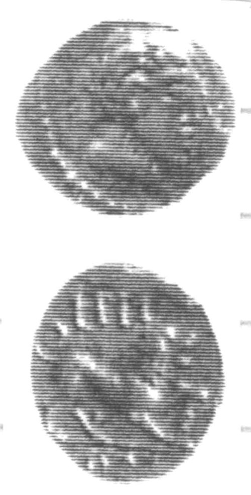 CCI-960204: An Iron Age Unit from SURREY of Eppillus Atrebates Celtic Coin Index reference:  96.0204