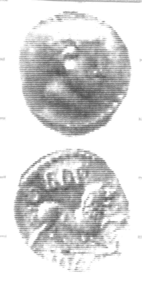 CCI-960205: An Iron Age Unit from SURREY of Eppillus Atrebates Celtic Coin Index reference:  96.0205