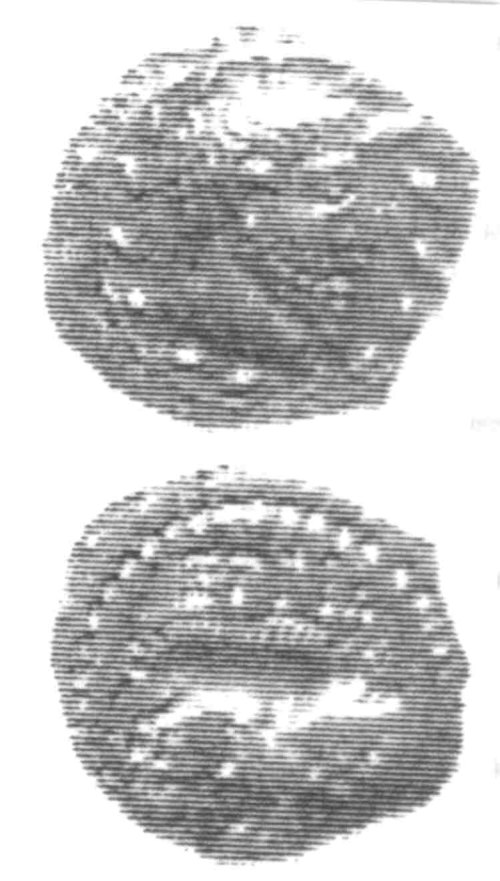 CCI-960237: An Iron Age Unit from SURREY of Eppillus Atrebates Celtic Coin Index reference:  96.0237