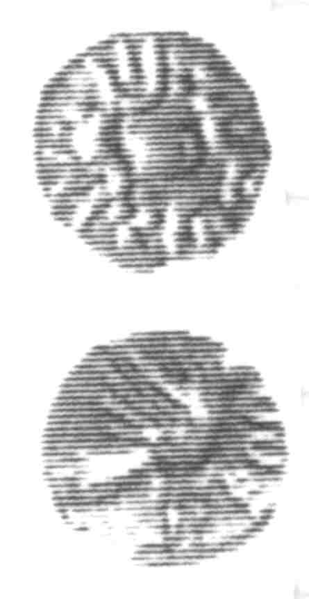 CCI-96026: An Iron Age Minim from SURREY of Eppillus Atrebates Celtic Coin Index reference:  96.026