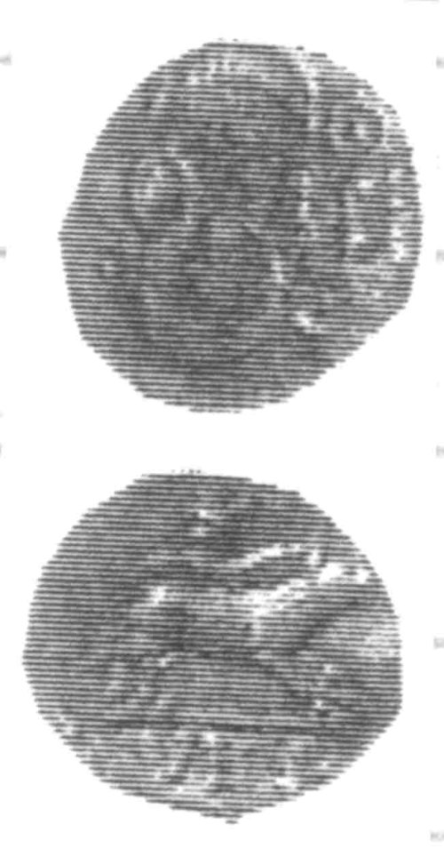 CCI-96028: An Iron Age Unit from SURREY of Verica Atrebates Celtic Coin Index reference:  96.028